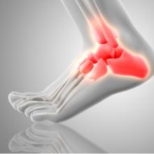 Reuma: wat is het en de invloed op uw mobiliteit